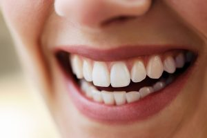 Cosmetic Dentistry in Vancouver, B.C.